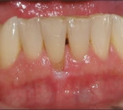 Free_Gingival_Graft_-_Before