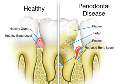 gum_disease_stages_stuart_fl