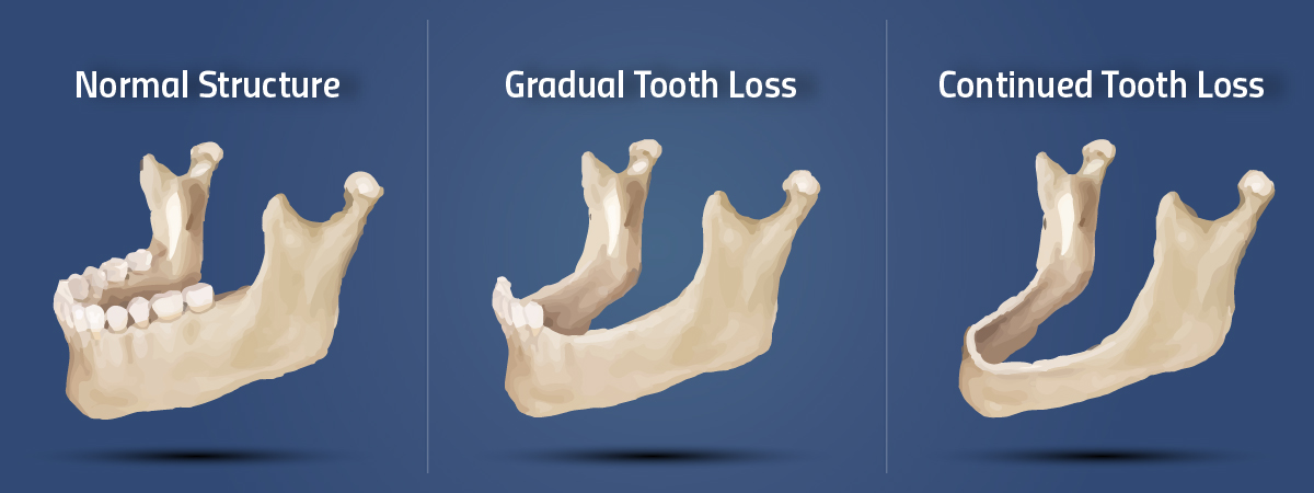 tooth_bone_loss_stuart_fl